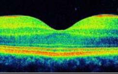 OCT-generated image of macular disease